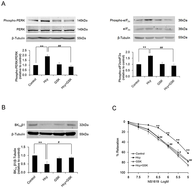 Inhibition of activation of PERK branch of ER stress by GSK2606414, evidenced by decreased phosphorylation of PERK and eIF2α (A, n=4), prevents homocysteine-induced loss of BKCa β1 protein in PCASMCs (B, n=4), which is accompanied by an improved vasorelaxant response to NS1619 (C, n=8).