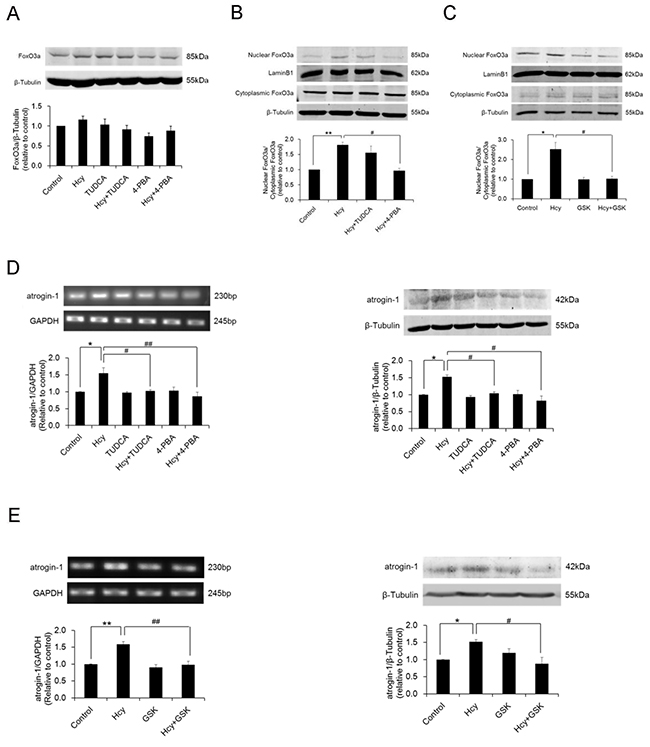 Homocysteine exposure promotes nuclear translocation of FoxO3a and upregulates atrogin-1 expression in PCASMCs.