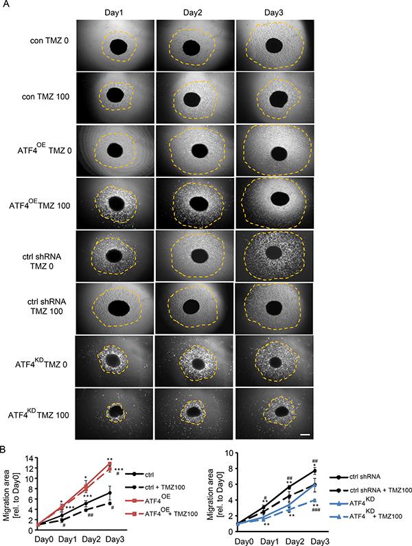 ATF4 regulates glioma cell migration.