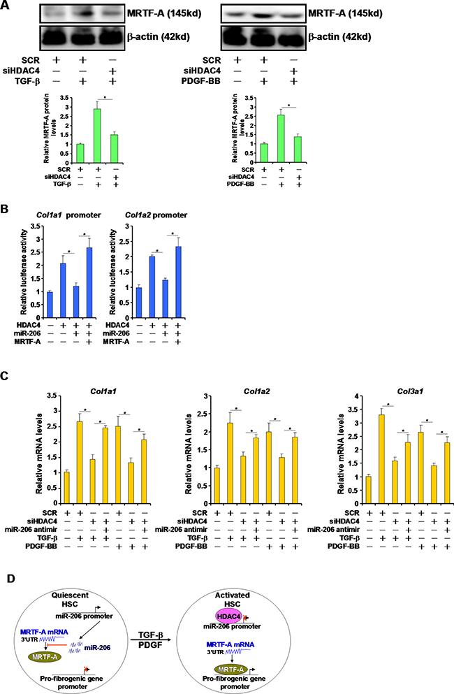 HDAC4 regulates fibrogenesis by targeting miR-206.