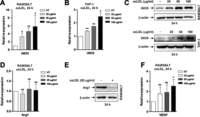 OxLDL induces M1 polarization of murine and human macrophages.