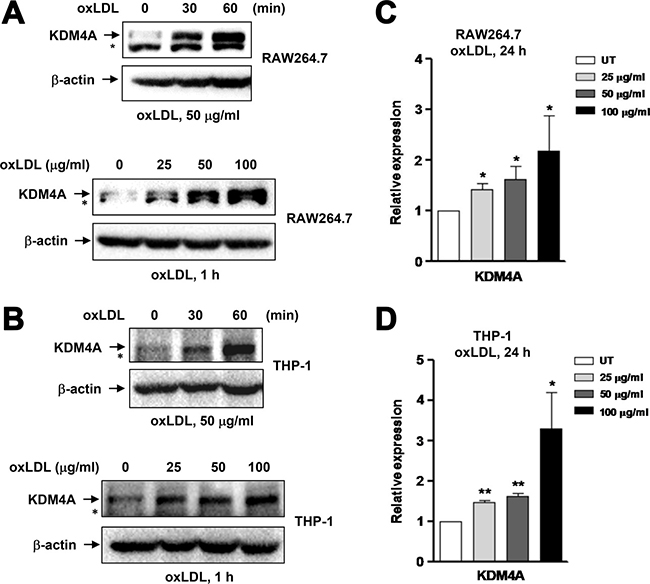 Exposure to oxLDL results in up-regulation of KDM4A in macrophages.
