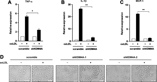 Knockdown of KDM4A prevents expression of inflammatory genes induced by oxLDL in RAW264.7 cells.