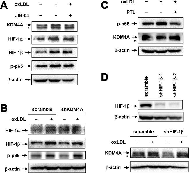 Up-regulation of KDM4A is independent of NF-κB and HIF activation in RAW264.7 cells exposed to oxLDL.