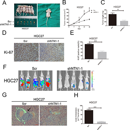 In vivo analysis netrin-1 in regulation of GC cells growth and metastasis.
