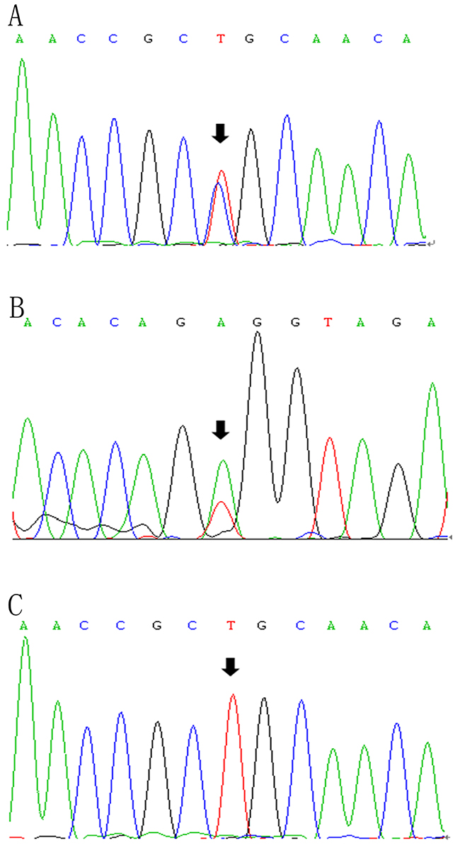 LPL gene (reference sequence NM_000237)sequencing diagram.