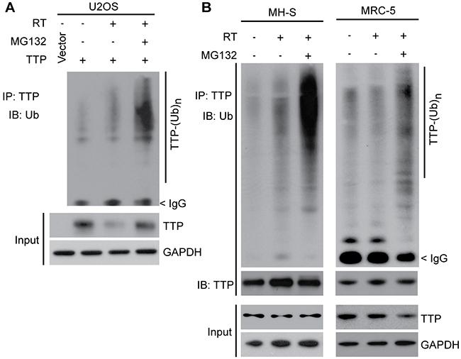 Ionizing radiation induces polyubiquitination-mediated proteasomal degradation of TTP.