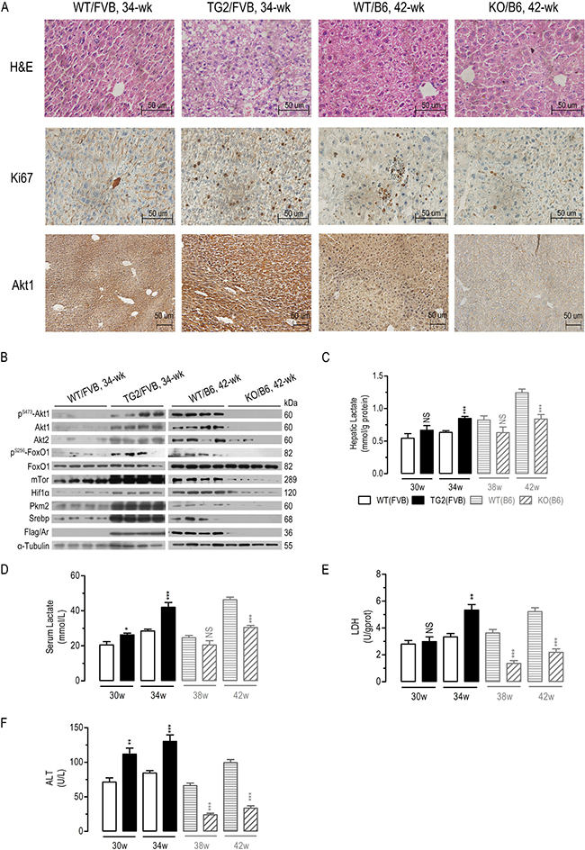 In vivo effects of liver-specific AR overexpression or Ar deficiency on mouse Akt/mTor signaling, LDH activity, and serum and hepatic lactate concentration.
