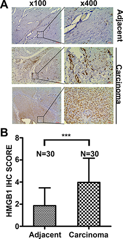 Oncotarget | HMGB1-mediated autophagy attenuates gemcitabine
