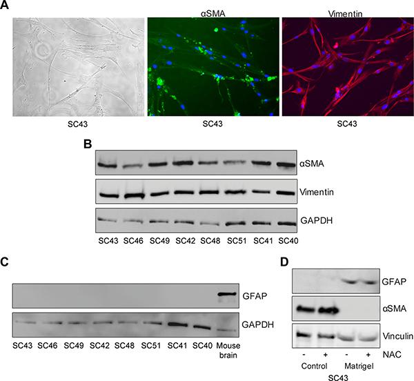 Phenotypic characterization of human pancreatic stellate cells.