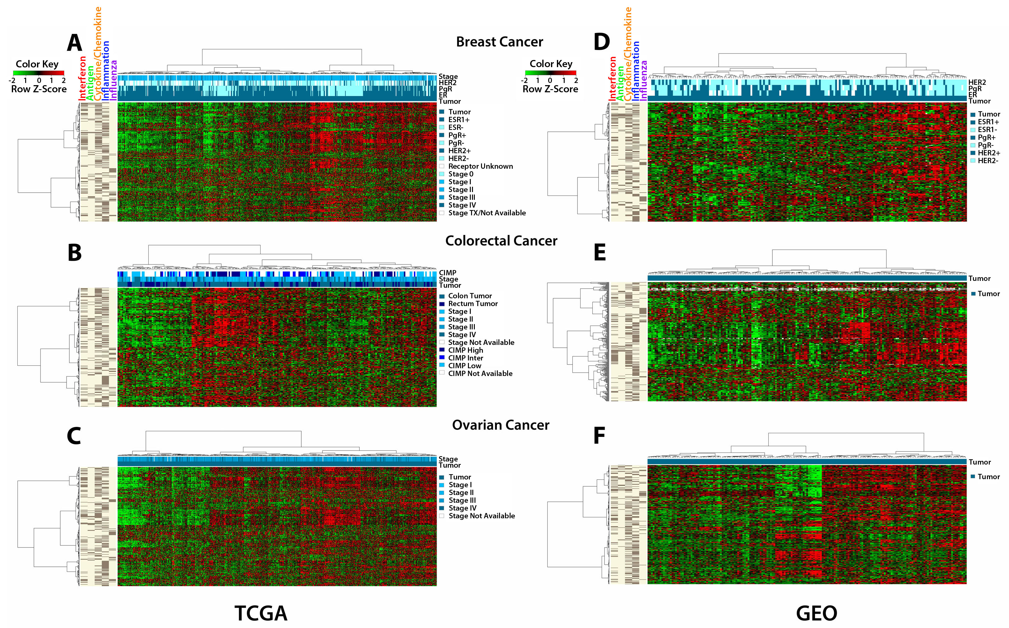 The AIM 317 gene panel clusters TCGA and GEO tumors into high and low immune signatures.
