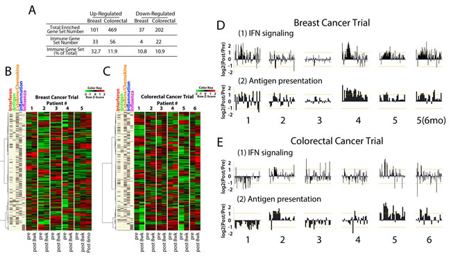 Core biopsies from breast and colorectal cancer patients treated with AZA/entinostat show upregulation of the AIM genes.