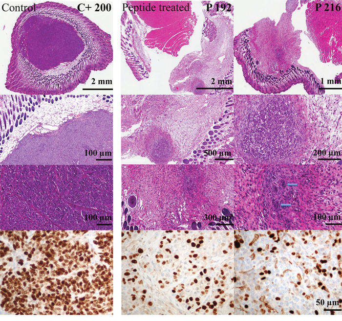 Cell proliferation of tumors of melanoma xenografts treated or non-treated with peptide R-DIM-P-LF11-334.