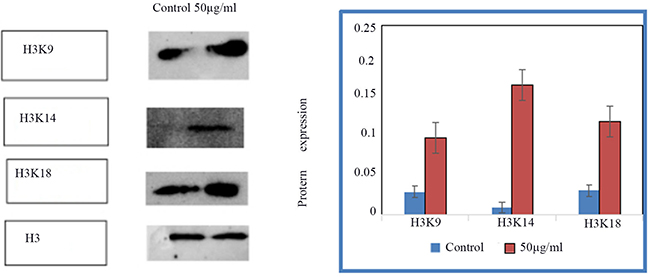 The expression of acH3K9, acH3K14, acH3K18 in control group and HSCs-T6 cells treated with 50ug/ml of blueberry anthocyanin for 36h.