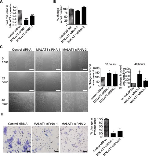 MALAT1 induces neuroblastoma cell migration and invasion.