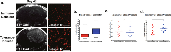 Immune tolerant mice have increased blood-brain-barrier permeability and differences in vascular features.