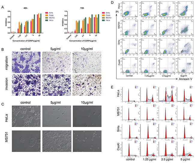 CONPs induce apoptosis and inhibit the migration of cervical carcinoma.