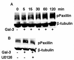 FIGURE 6: ERK1/2 inhibition aborted the phosphorylation of paxillin induced by Gal-3.