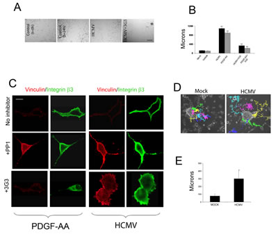 HCMV promotes glioma cell motility and enhances primary glioma stem cell migration.