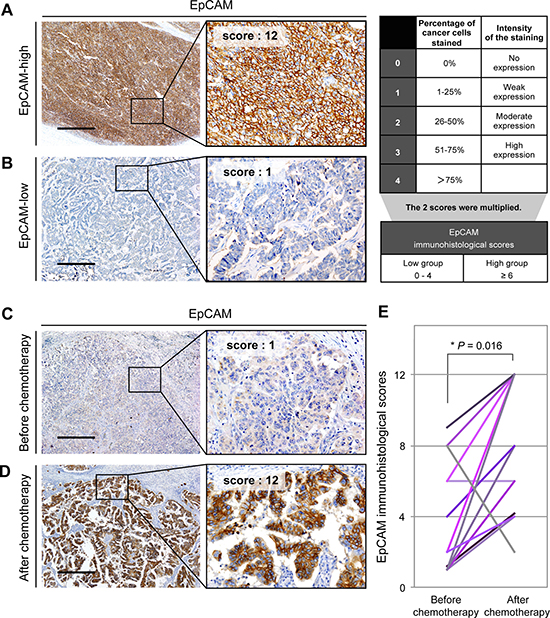 EpCAM expression is increased in ovarian cancer tissues obtained after platinum-based chemotherapy.