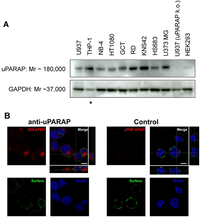 Expression of uPARAP by different cancer cell lines and specific cellular uptake of fluorescence-labeled mAb 2h9.