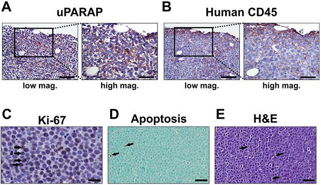 Histology of untreated U937 tumors.