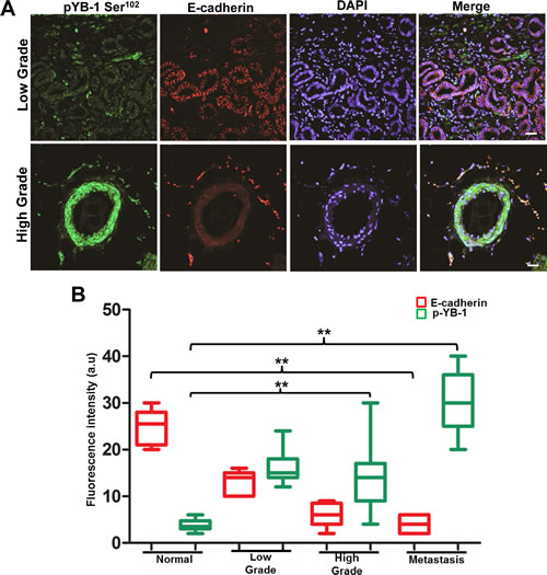 YB-1 expression increases with increase in tumor grade and is negatively correlated with E-cadherin expression in human PCa tissues.