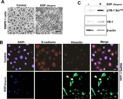 YB-1 Phosphorylation is increased in an endogenous EGF model of EMT.