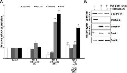 Fisetin inhibits TGF-β induced EMT in PCa cells.