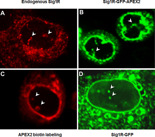 Different fluorescence microscopy methods identify Sig1R inside the nucleus.