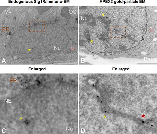 Both immuno-EM and antibody-free APEX2-enhanced gold-particle EM visualize Sig1R localization inside the nucleus.