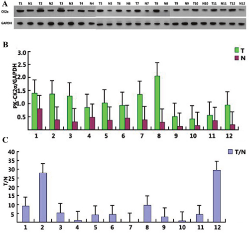 CK2α expression in 12 selected tumor samples.