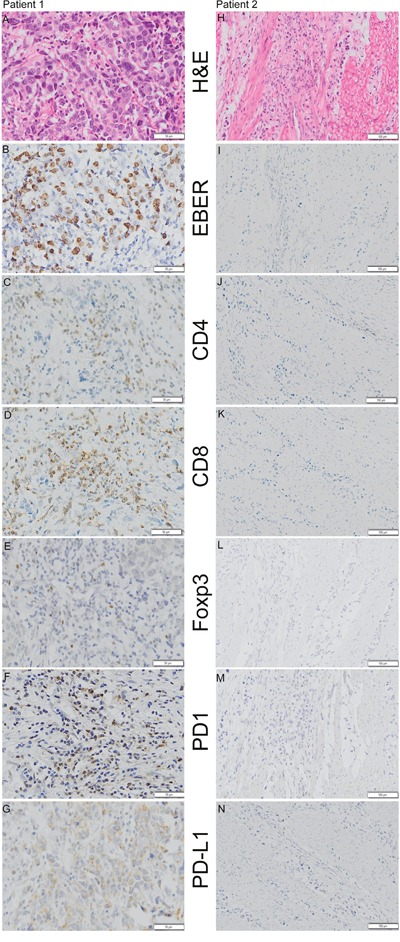 Representative examples of H&E staining, EBER (Epstein-Barr Virus-encoded RNA) in situ hybridization and CD4 (cluster of differentiation 4), CD8 (cluster of differentiation 8), Foxp3 (Forkhead box P3), PD-1 (programmed death 1), and PD-L1 (programmed death ligand-1) immunohistochemistry staining in 2 patients.