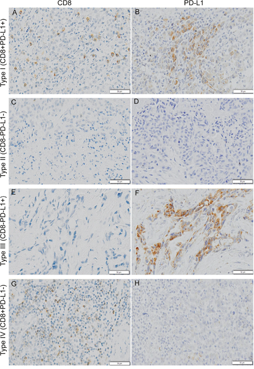 Typical examples of four types of tumor immune microenvironment based on CD8 (cluster of differentiation 8) and PD-L1 (programmed death ligand 1) immunohistochemistry staining.