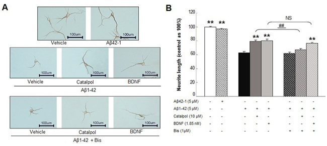 The effects of catalpol (10 µM) and BDNF (1.85 nM) on the growth of MAP-2-positive neurite treated with Aβ