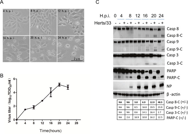 NDV infection induces both intrinsic and extrinsic apoptosis in HeLa cells.