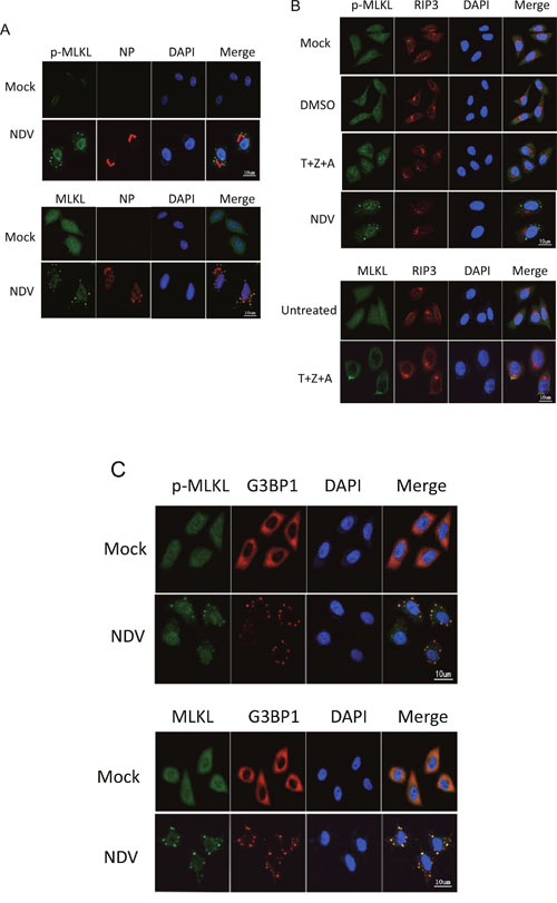 MLKL clusteres to SGs during NDV infection, instead of plasma membrane translocation.