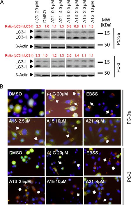 Acridine compounds induce autophagy in prostate cancer cells.