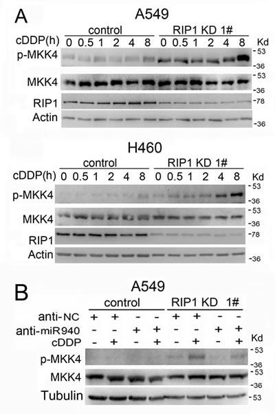 Cisplatin-induced MKK4 activation is enhanced in RIP1 knockdown cells.