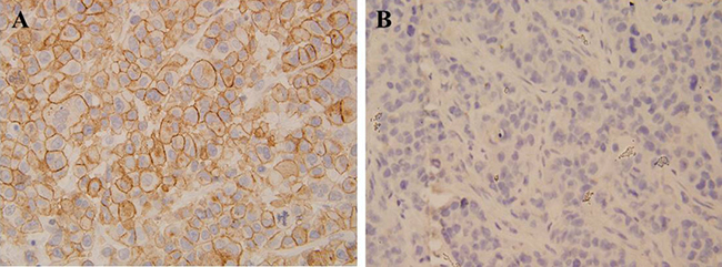 Immunohistochemical analysis revealed that cervical cancer tissue had stronger CCL19 expression compared with that of corresponding adjacent noncancerous tissues.