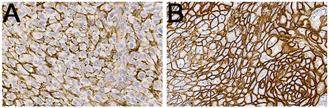 Representative IHC images of CD44v6 stainings of UM-SCC-74B (A) and A431 (B) xenografted tumors