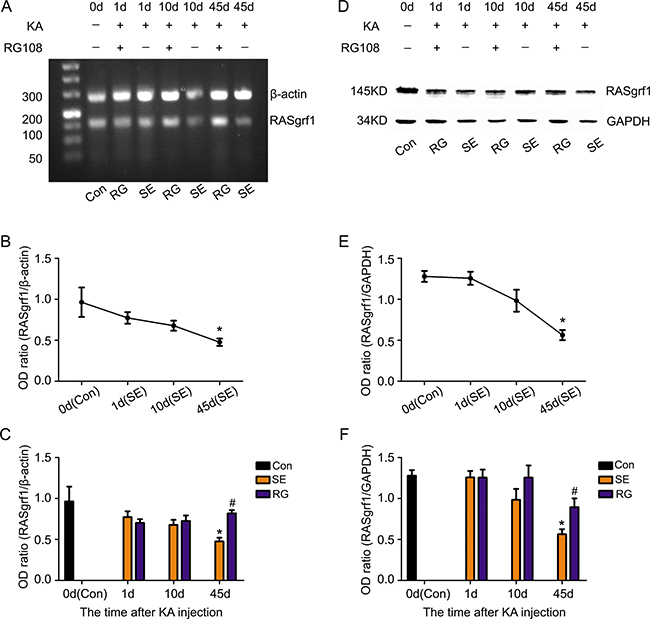 The effect of RG108 pretreatment on RASgrf1 expression at different time points after the onset of epileptic seizures.