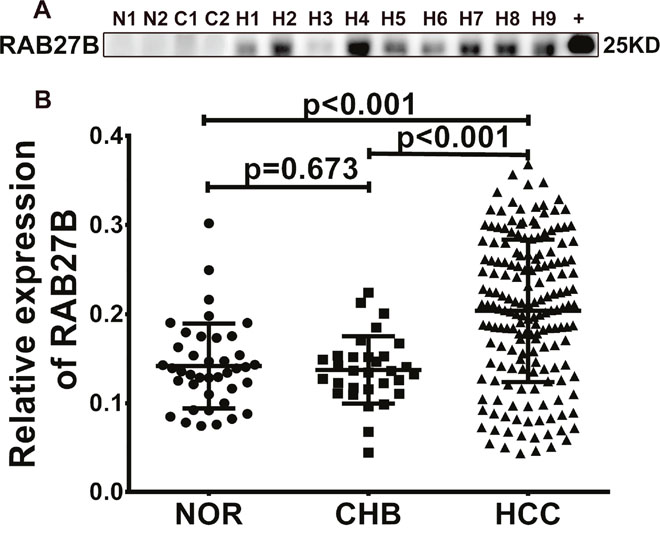 RAB27B is highly expressed in the serum of patients with hepatocellular carcinoma (HCC).