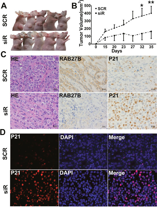 RAB27B downregulation inhibits tumor growth in vivo.