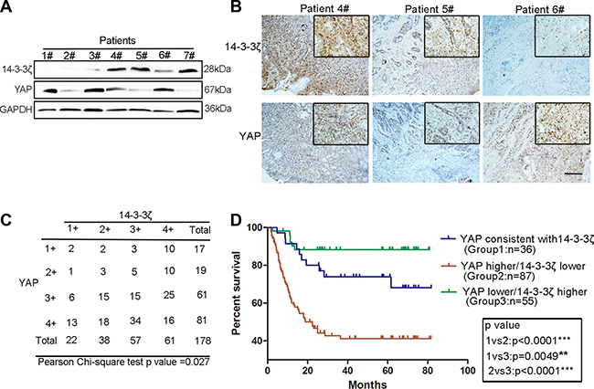 Contrasting expression patterns of YAP and 14-3-3ζ in GC tissues were associated with patient prognoses.