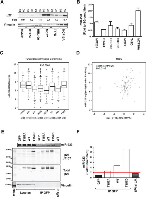 p27-miR-223 axis is deregulated in breast cancer