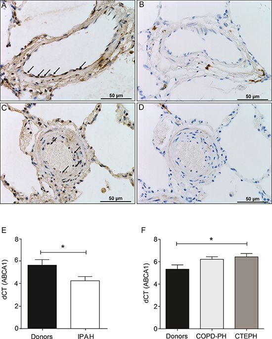 Loss of protein expression of ABCA1 in PAH PEC and decreased mRNA expression of ABCA1 in lungs from PAH patients.