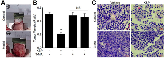 KSP suppresses the growth of gastric cancer in mice.
