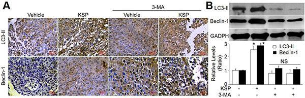 KSP increases autophagy of gastric cancer in mice.