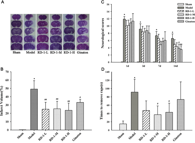Protective effect of RD-1 against brain injury after cerebral ischemia reperfusion in MCAO rats.